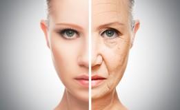 Begini Cara Mengatasi Penuaan Dini Pada Kulit
